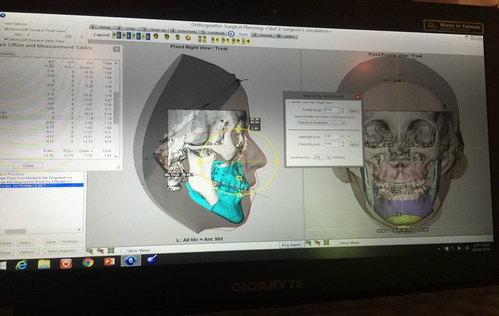craniofacial center dr alejandro ramirez